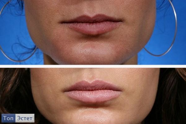 Как проходит процедура увеличения губ