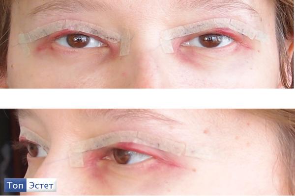 шрамы после операции на сердце фото