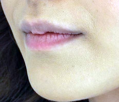 Увеличение губ гиалуроновой кислотой какой препарат лучше