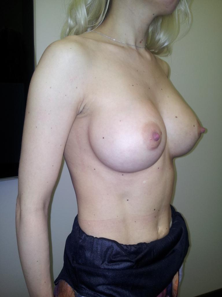 отзывы об увеличении груди 2015