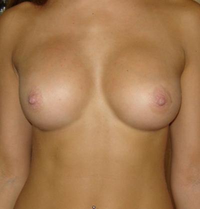 Силиконовую накладку для груди