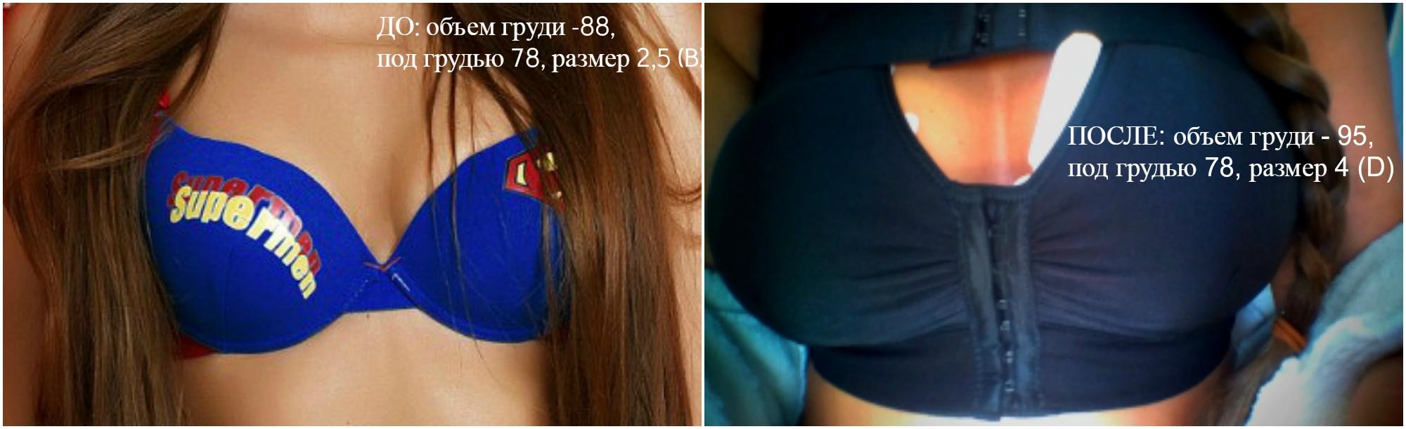 неделя после увеличения груди