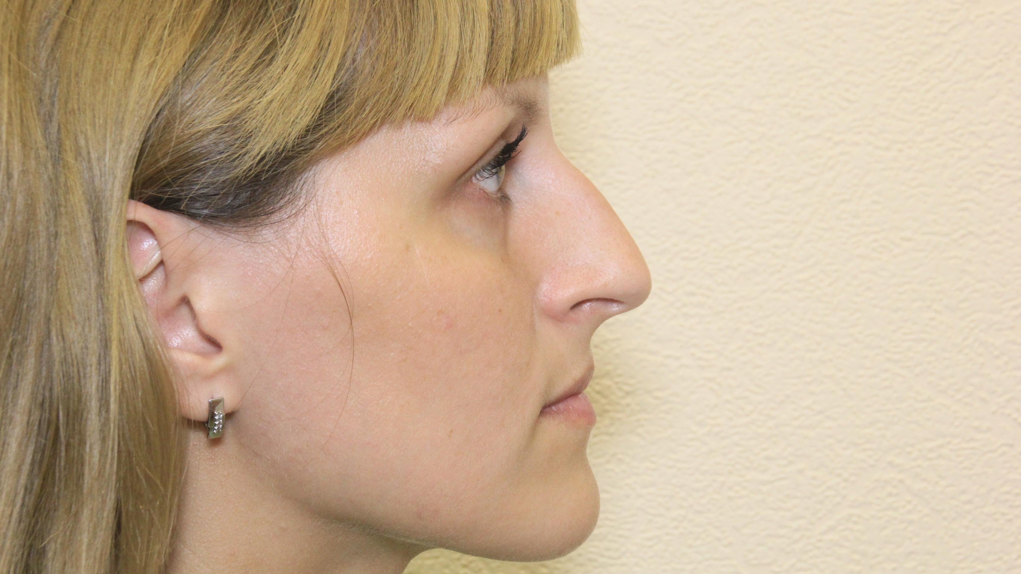 Как сделать себе нос с горбинкой 422