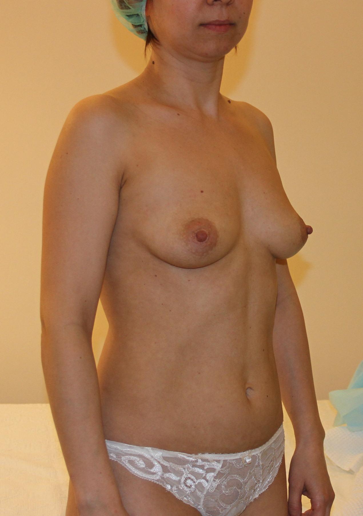 Упражнения для увеличения бюста груди