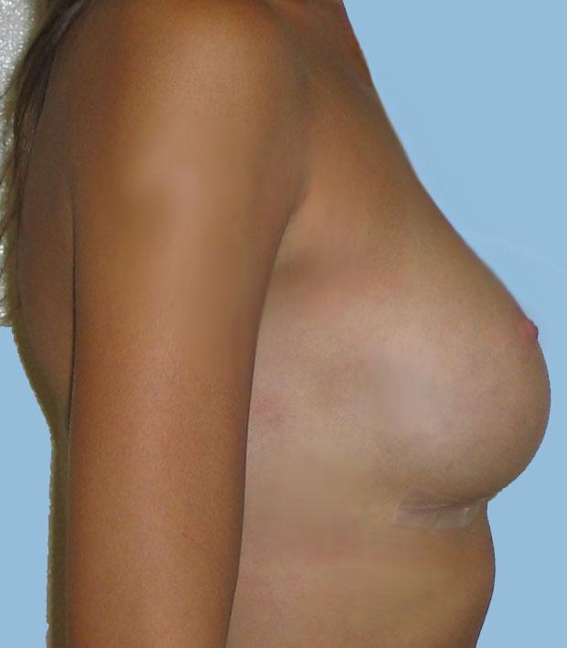 Сколько стоит пластика груди в казани