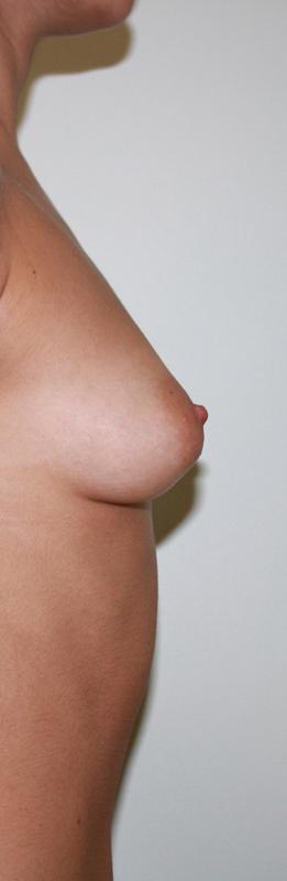 Сколько стоит операция с увеличения груди