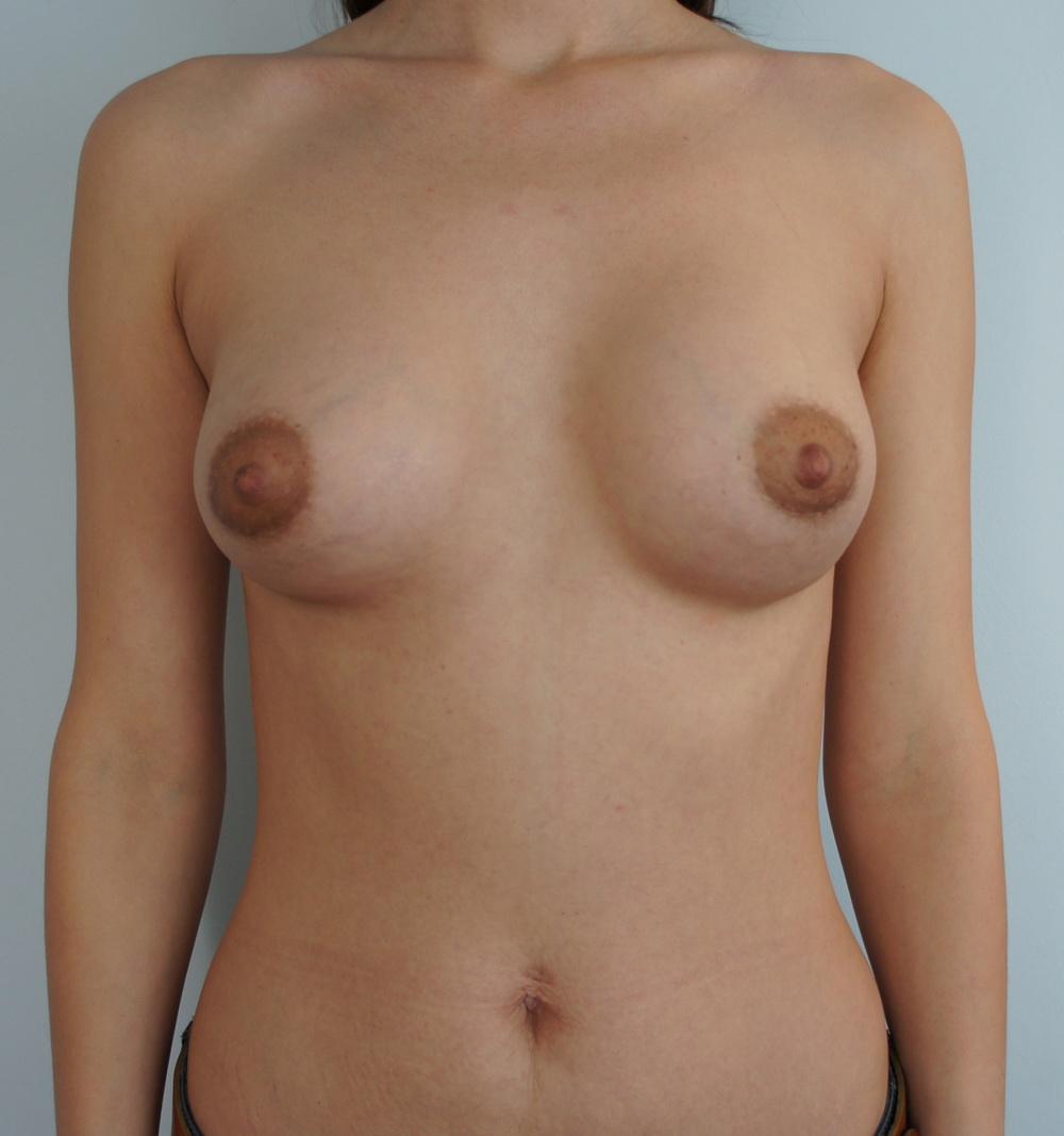 Боня сделала пластику груди