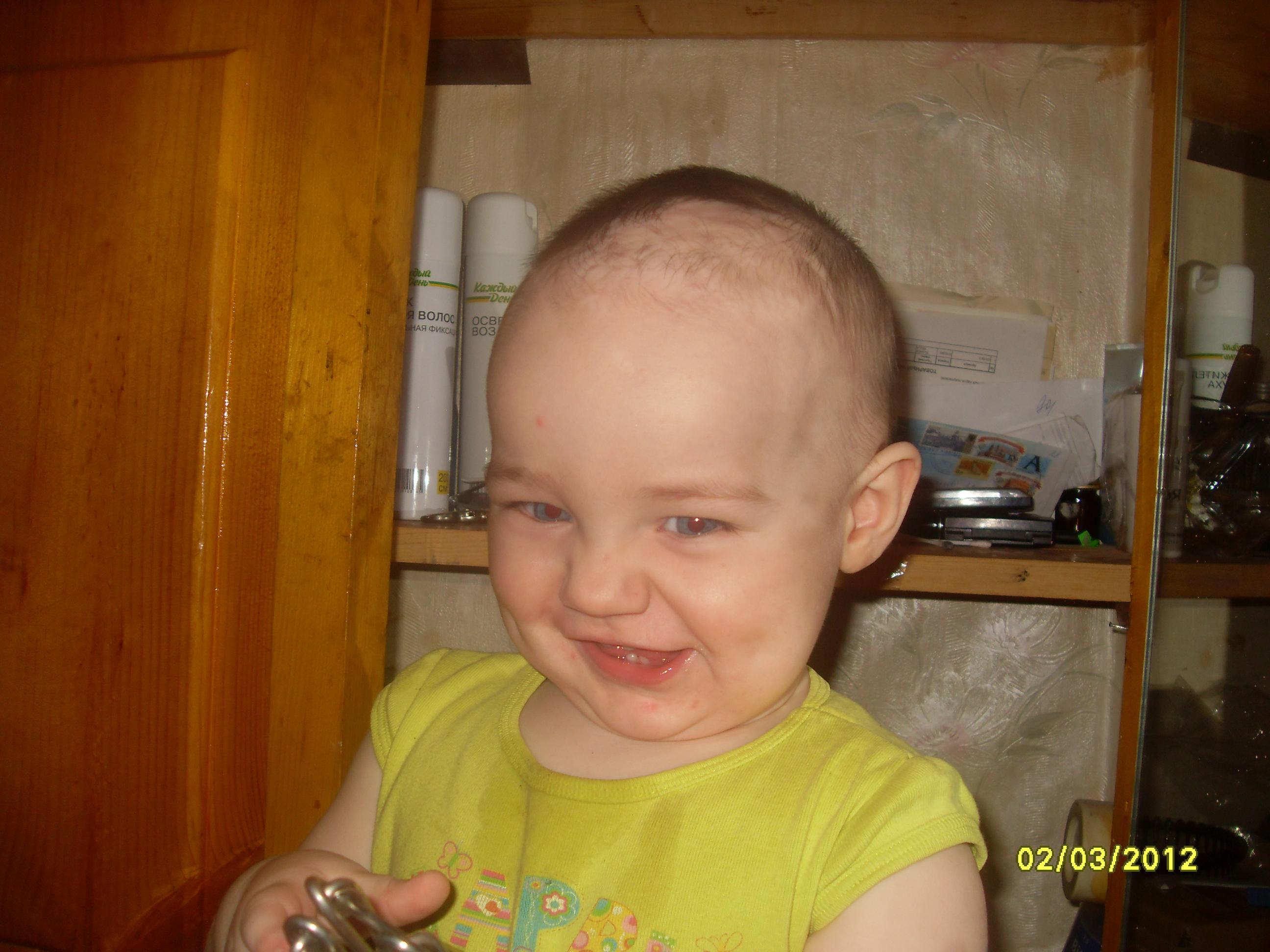 растут ли волосы после лазерной эпиляции