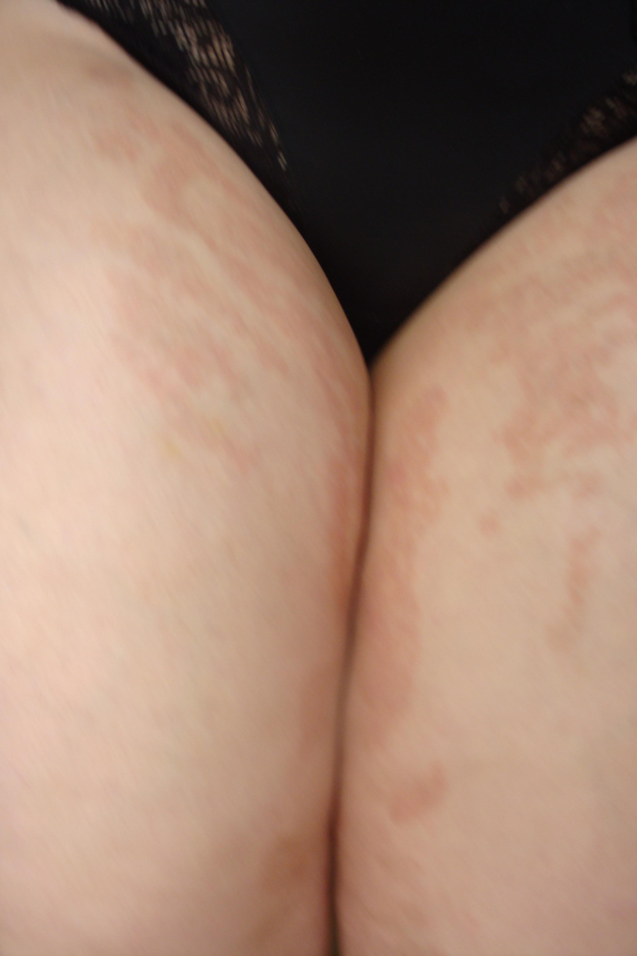 отзывы о лазерной эпиляции на лице женщины