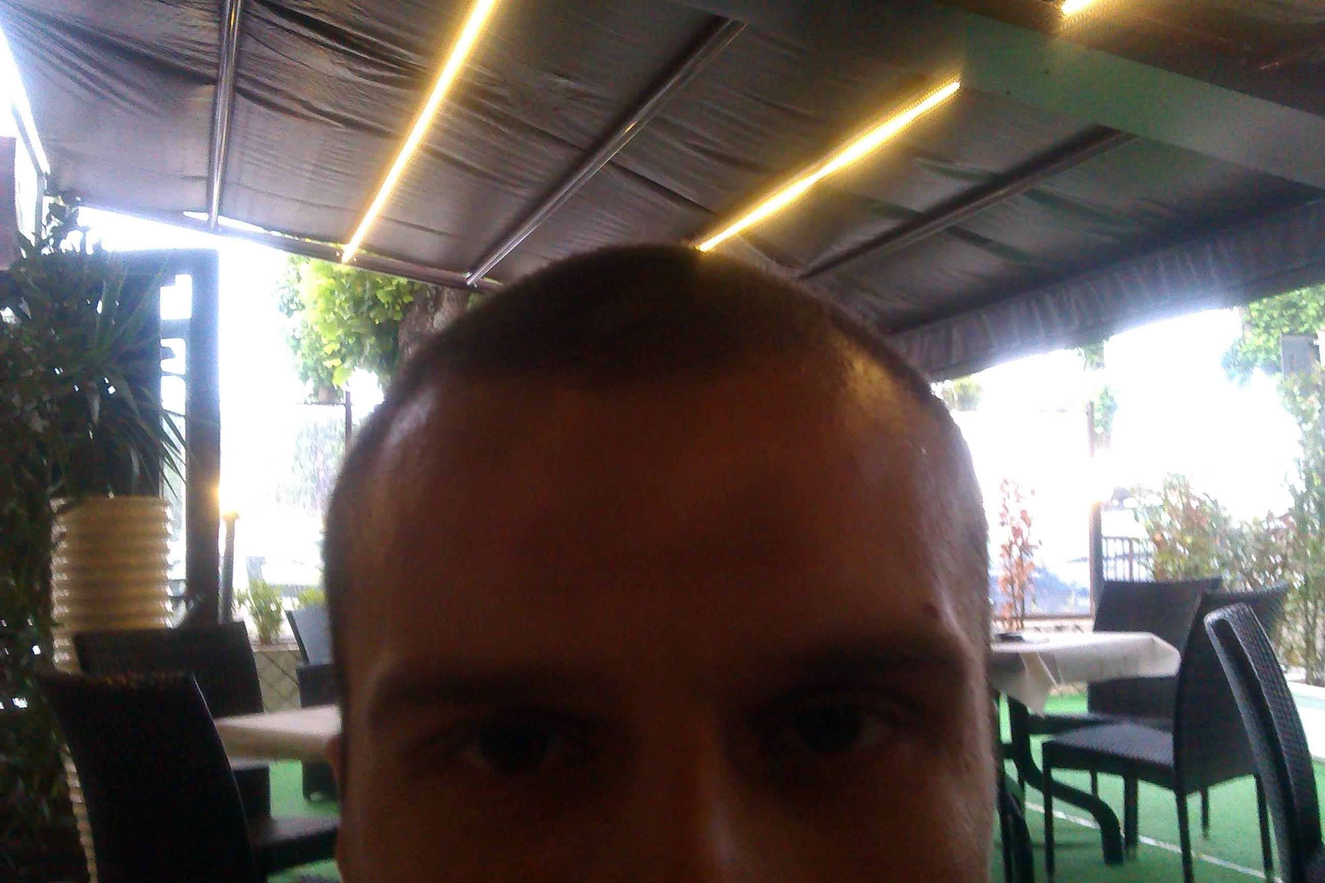 У кого выпадали волосы после юнидокса