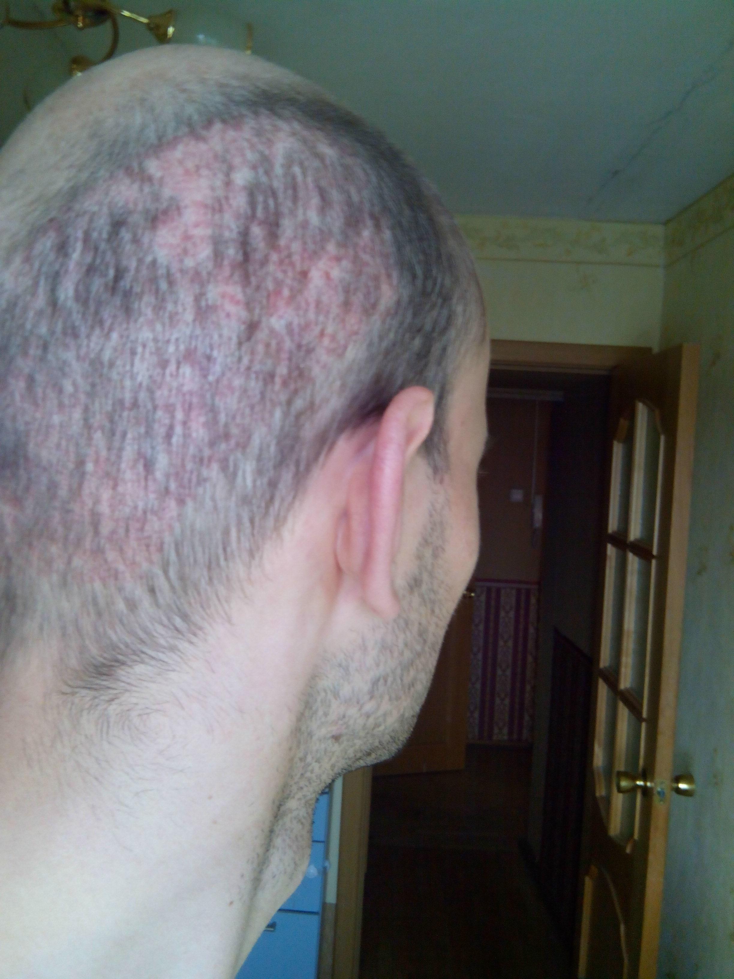 Лореаль средство от облысения волос для мужчин