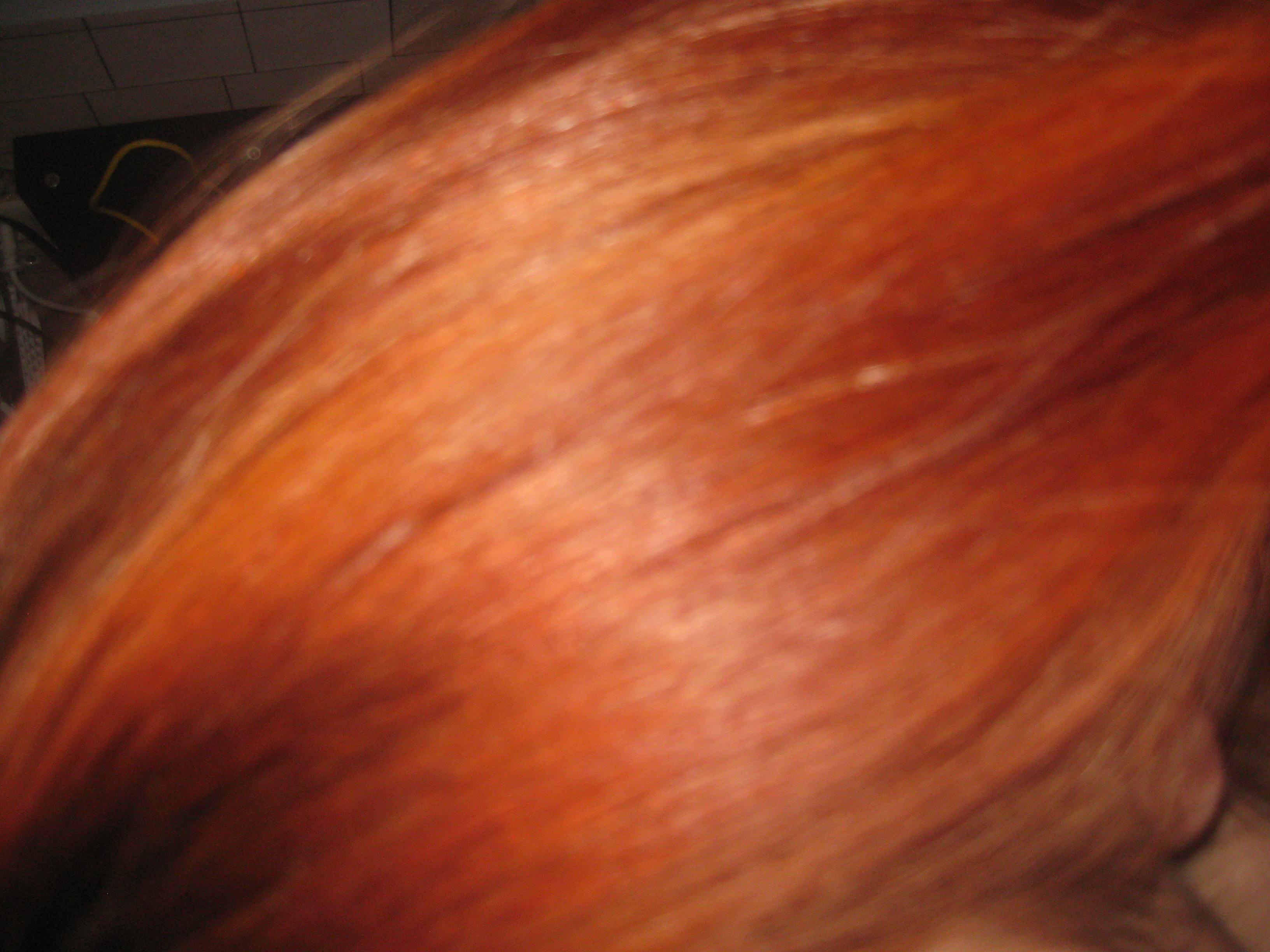 Лечение выпадения волос женщин после родов