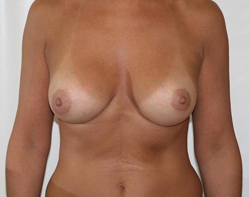 Лучший врач по коррекции груди