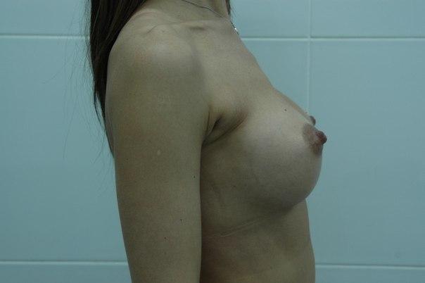 шрамы после увеличения груди