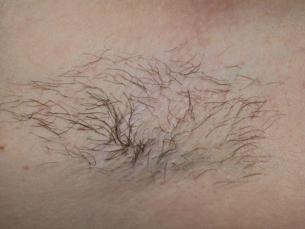 Как сделать так чтобы волосы на подмышках не росли