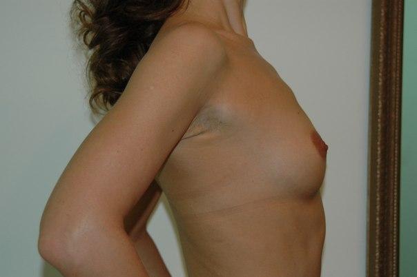 подтянутая грудь фото