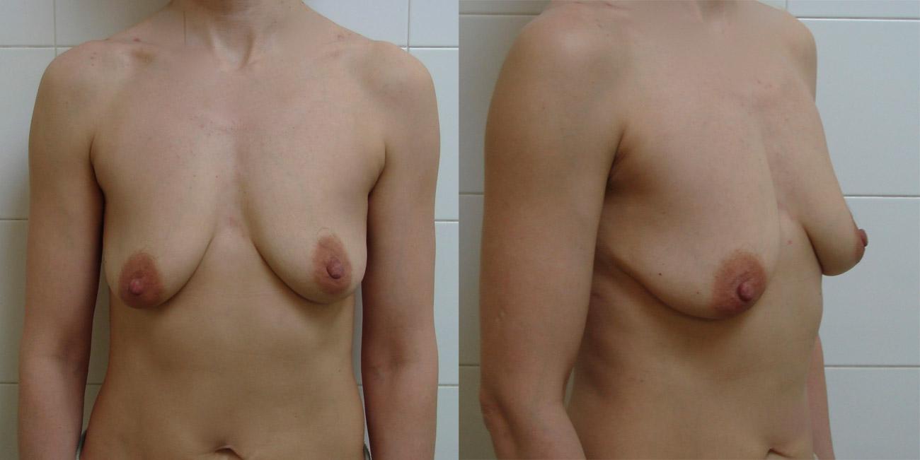 Интим-магазин силиконовая грудь