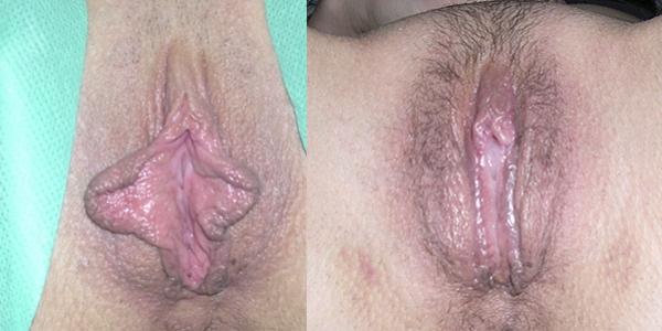 воспаление малых половых губ