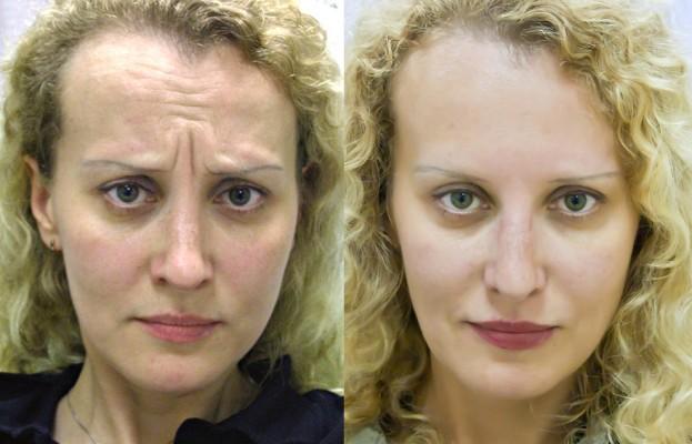 ботокс лоб до и после фото